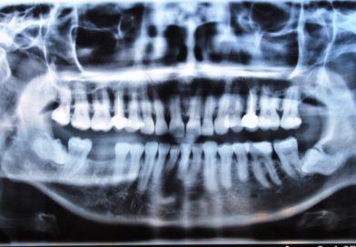 Обезболяване при екстракция на мъдреци, абсцеси и флегмони в лицево-челюстната област.