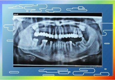 Договор със здравната каса / НЗОК/ на стоматолог-хирург