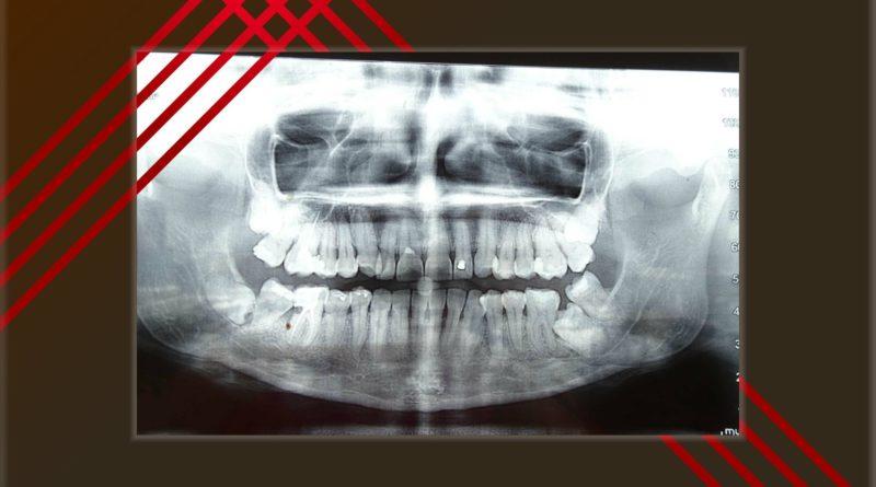 Изваждане на ретинирани зъби