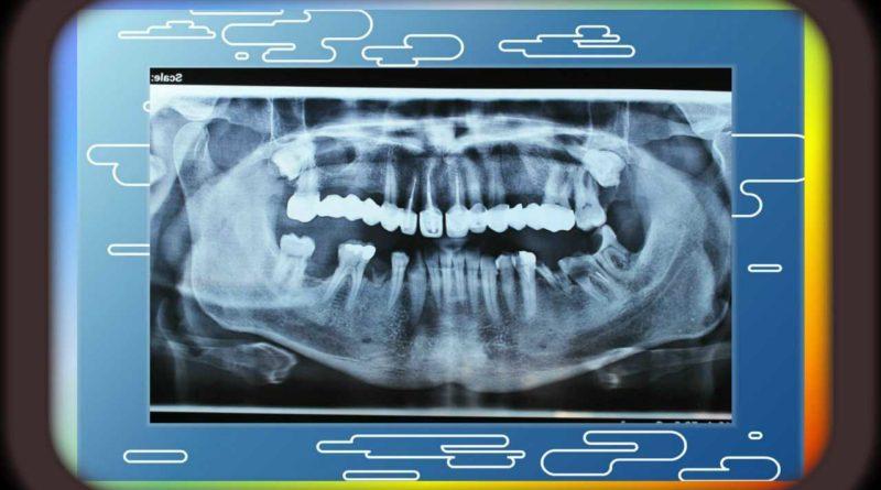 Изваждане на ретинирани кучешки зъби на долната челюст