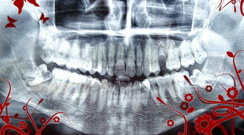 Медикаментозна терапия при изваждане на ретинирани мъдреци от дежурен зъболекар –хирург.