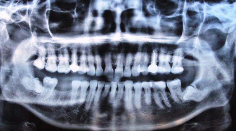 Дежурен стоматолог хирург от ВМА за техника на изваждане на дълбоко ретиниран хоризонтален мъдрец.