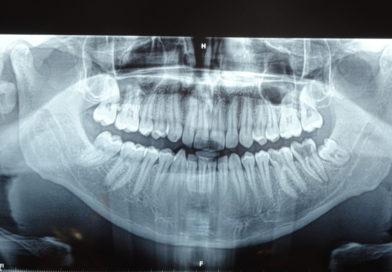 Дежурен стоматолог-хирург д-р Трендафил Василев от ВМА за оперативния подход при дълбоко ретиниран мъдрец със закривени корени