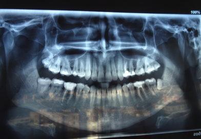 Мъдреците като причина за ортодонтска аномалия