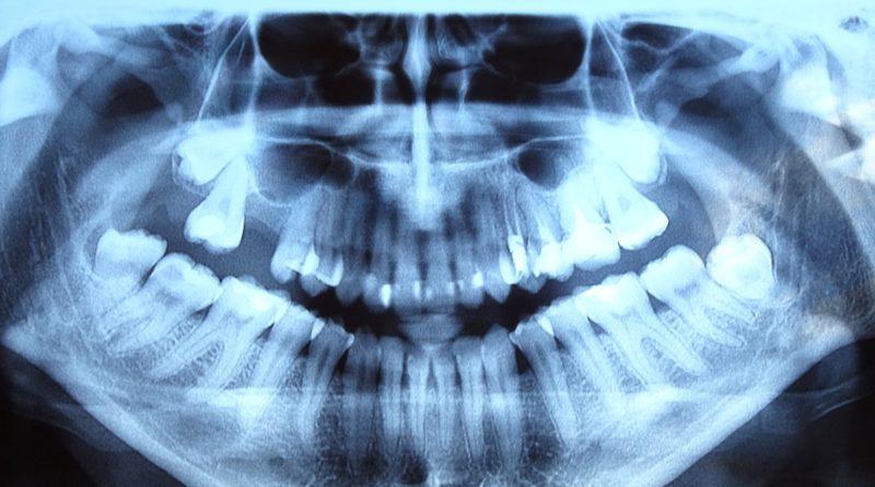 Операция за отстраняване на дълбоко ретиниран мъдрец на горната челюст.