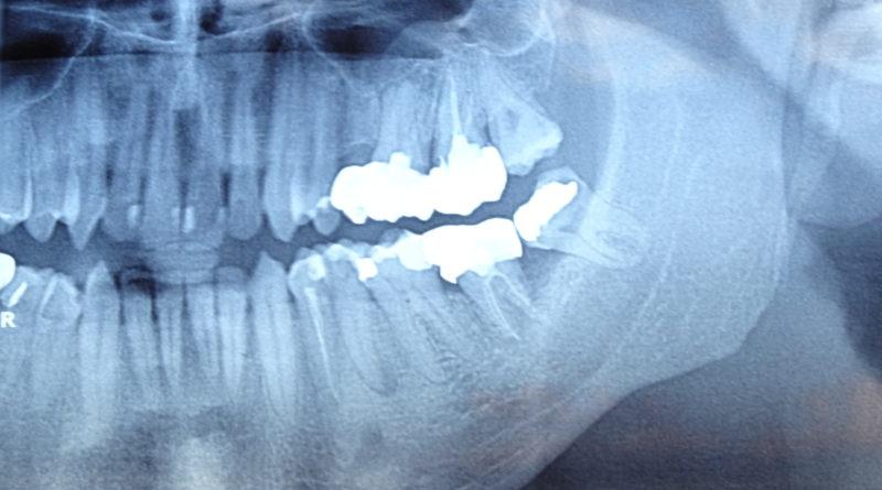 Оперативен подход за изваждане на дълбоко разположен мъдрец в долната челюст.