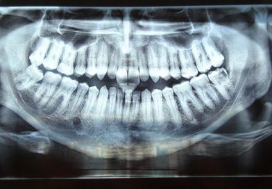 Физиология и етапи на зарастване на костна рана след екстракция на зъб.