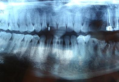 Алергия и местна упойка в стоматологичната практика.